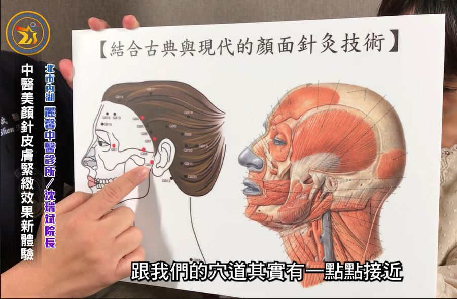 【中醫『美顏針』介紹 / 沈瑞斌理事長】-台灣精準醫療醫學會製作